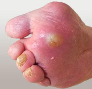 инфекционное воспаление окружающих мягких тканей