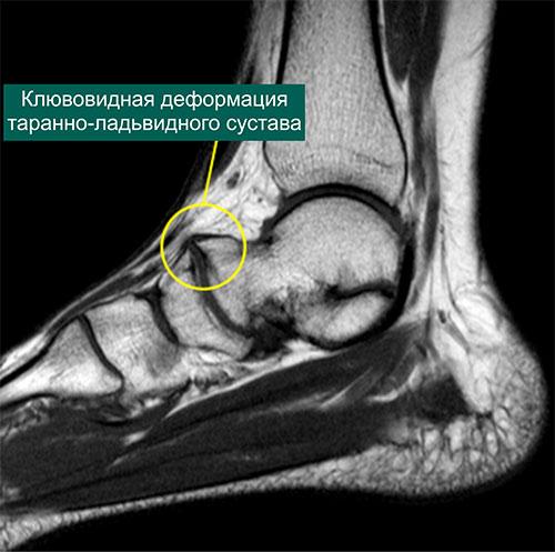 МР-томограмма заднего отдела стопы