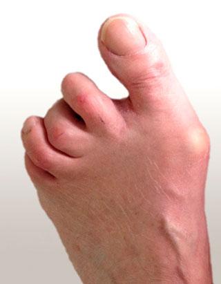 двусторонняя деформация пальцев стоп