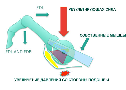 когтеобразная деформация одного пальца