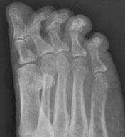 Рентгенограммы стопы когтеобразные пальцы