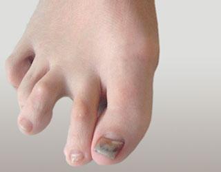 Молоткообразная деформация 2 пальцев