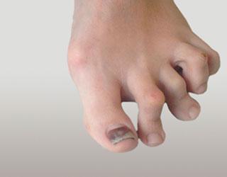 Молоткообразная деформация трех пальцев