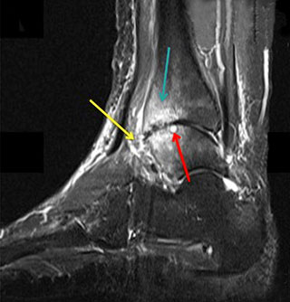 МР-томограмма при остеоартрозе