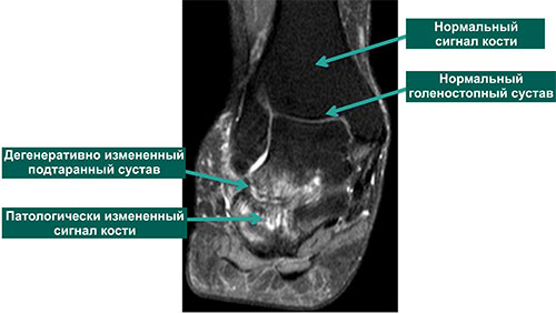 МР-томограмма поражения подтаранного сустава