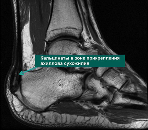 МРТ картина тендинита ахиллова сухожилия