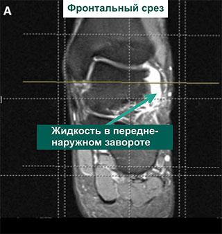 МР-томограммы голеностопного сустава