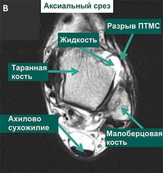 разрыв ПТМС ноги