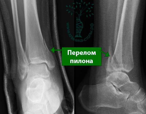 Перелом большеберцовой кости сроки лечения