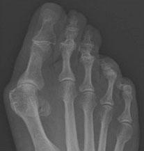 Рентгенограммы ноги