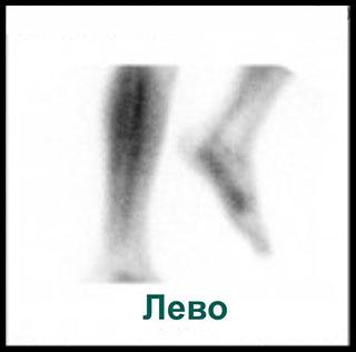Сцинтиграмма вид слева