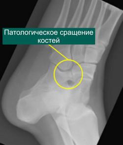 Рентгенограмма пяточно-ладьевидной коалиции до операции