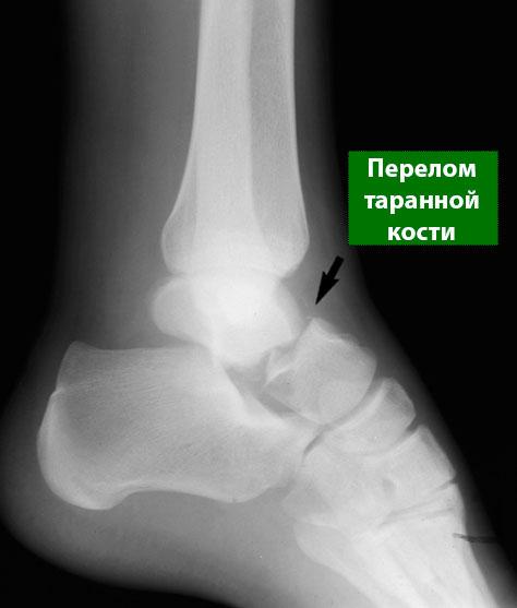 перелом шейки таранной кости